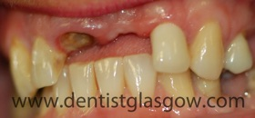 implant and two tooth bridge before