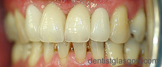 dental implant gallery case8-after