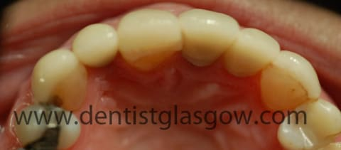 implants on top of gold abutments 2