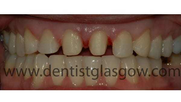 crown and fillings study 1