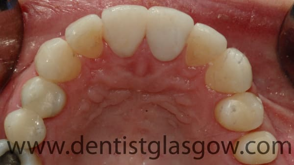 crown and fillings study 4